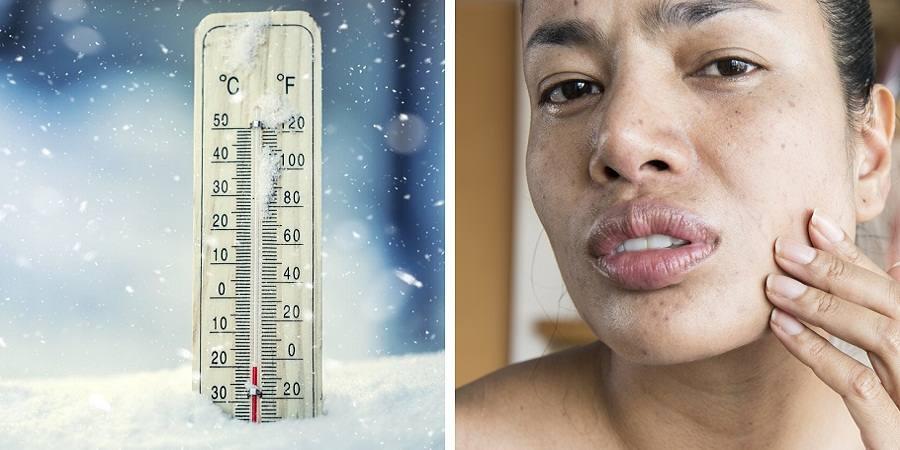 چرا در زمستان پوست خشک و بد حالت می شود و چطور باید این مشکل را برطرف کرد؟